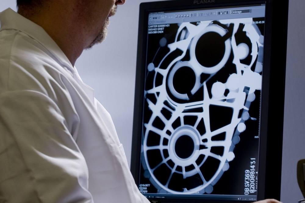 Contrôle radiographique sur pièce de fonderie en aluminium.